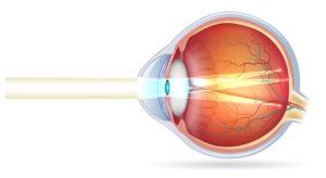Cirugía refractiva - Corregir el Astigmatismo