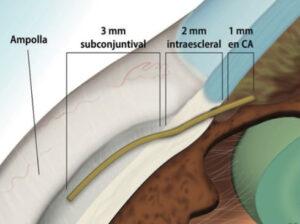 Dispositivo XEN para el glaucoma