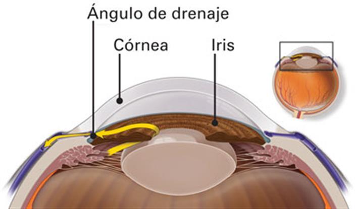Cómo se produce el Glaucoma