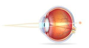 Cirugía refractiva - Corregir la Hipermetropía