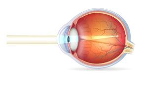 Cirugía refractiva - Corregir la Miopía