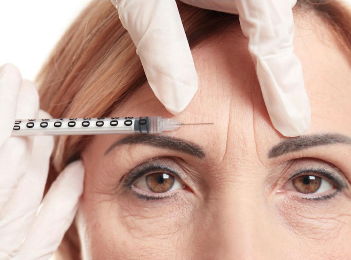 Toxina botulínica o Botox facial