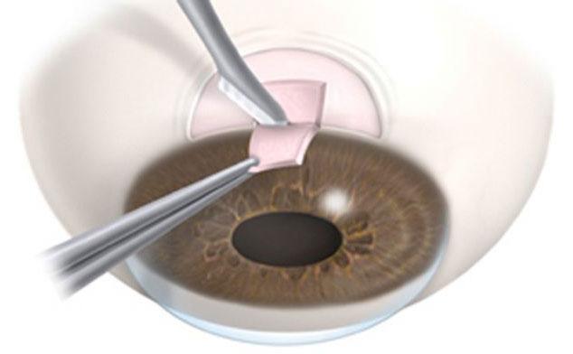 Trabeculectomía: cirugía del glaucoma