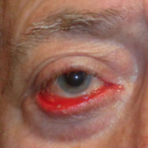 Ectropión ocular o ectropión en párpados
