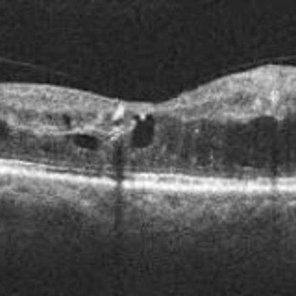 Tratamiento del Edema macular