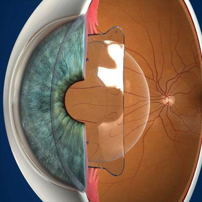 Lentes ICL o lentes intraoculares fáquicas para corregir miopía o astigmatismo.