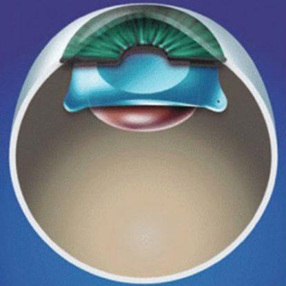 Cirugía refractiva - Lente fáquica