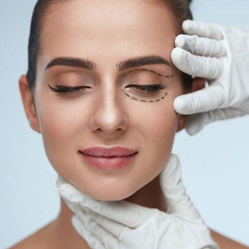 Operación de párpados o blefaroplastia quirúrgica